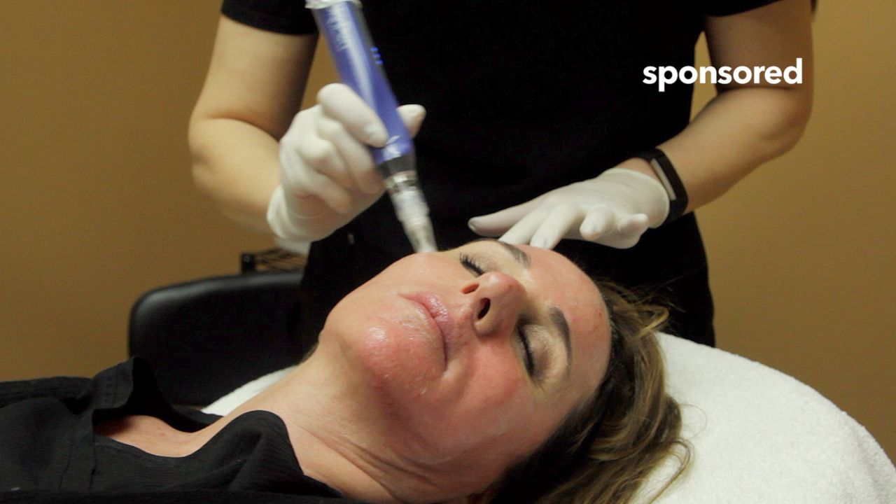 The Skin pen treatment is an in- office procedure that will remodel your skin to reverse the signs of aging, revive skin health and reveal beautiful skin. What you can expect from microneedling procedure A comfortable experience. A short procedure time, approximately 30 minutes. A plan for optimal results Mild post-procedure effects similar to a mild to moderate sunburn. Effective on all body parts, including face, neck and décolletage. Safe for all skin types, light to dark. Ideal any time of the year. Little to no down time. Beautiful, lasting results. For more information, please visit www.eternalaser.com/skinpen-microneedling