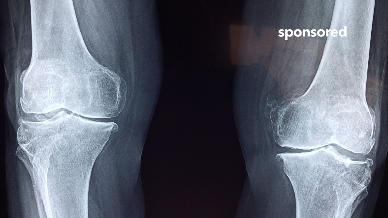 An ACL tear is a knee injury that can occur at any time, but often it happens during sports or an activity where a person is twisting, pivoting or jumping and the knee hyperextends or twists unnaturally. Sometimes, a patient may not need surgery. However, if the ligament is completely torn or the damage is severe, surgery likely will be the best option. Dr. William D. Cox Jr., an orthopedic surgeon with Centegra Physician Care-McHenry County Orthopedics, explains what to watch for in an ACL injury.  For more information on Centegra Health System, please visit https://centegra.org/.
